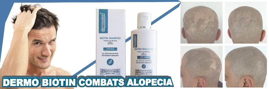 Does biotin help alopecia areata